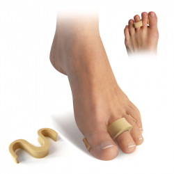 Hammer toe separator